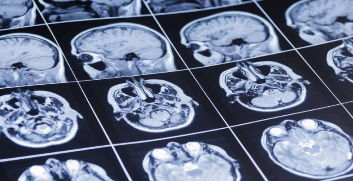 2014 年ノーベル生理学医学賞は脳の「場所細胞」の発見へ